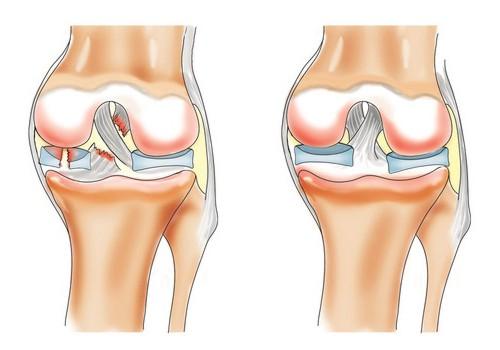 Лечение артрита коленного сустава при помощи Полимедэла