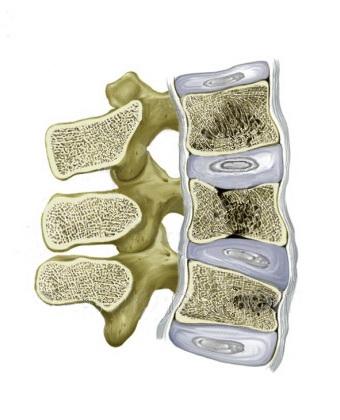 Profilaktika-i-lechenie-osteoporoza