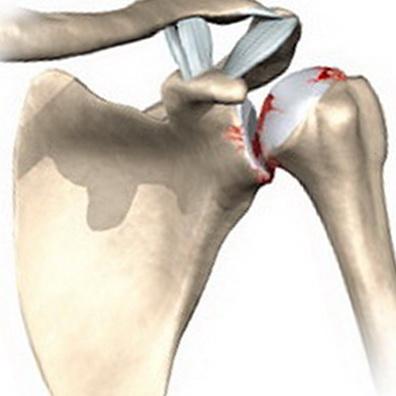 Артрит плечевого сустава один
