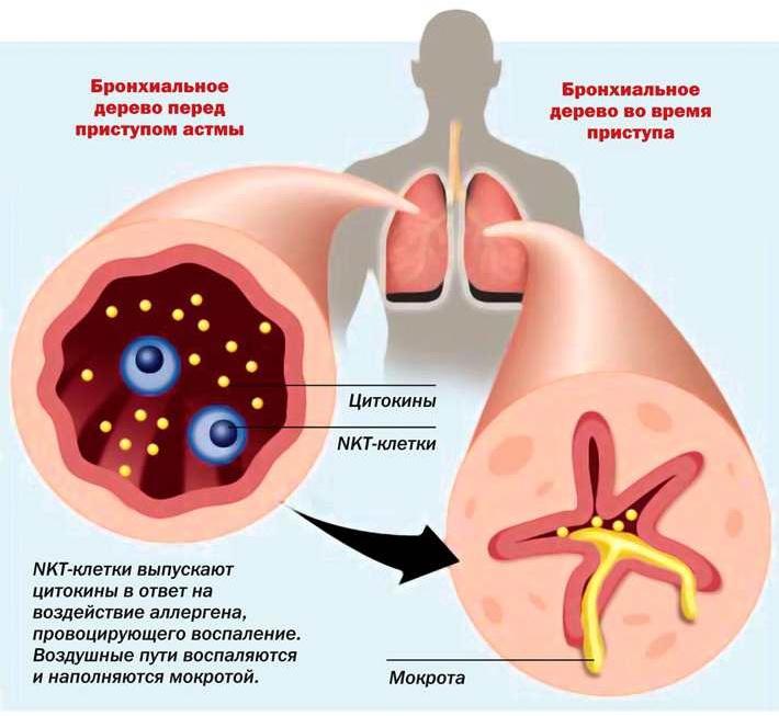 Что такое бронхиальная астма и ее признаки