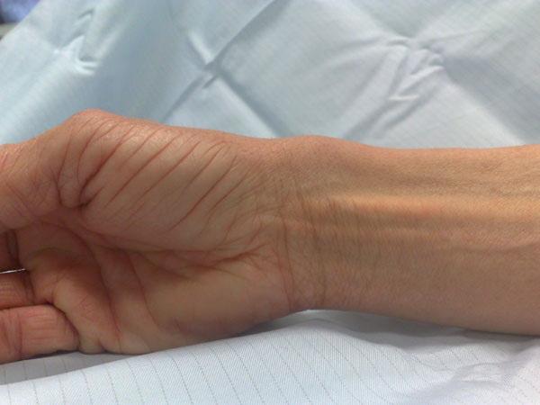 Тендовагинит кистей рук – это воспаление влагалищ сухожилия. Плёнка Полимедэл способна  приостановить развитие этой болезни.