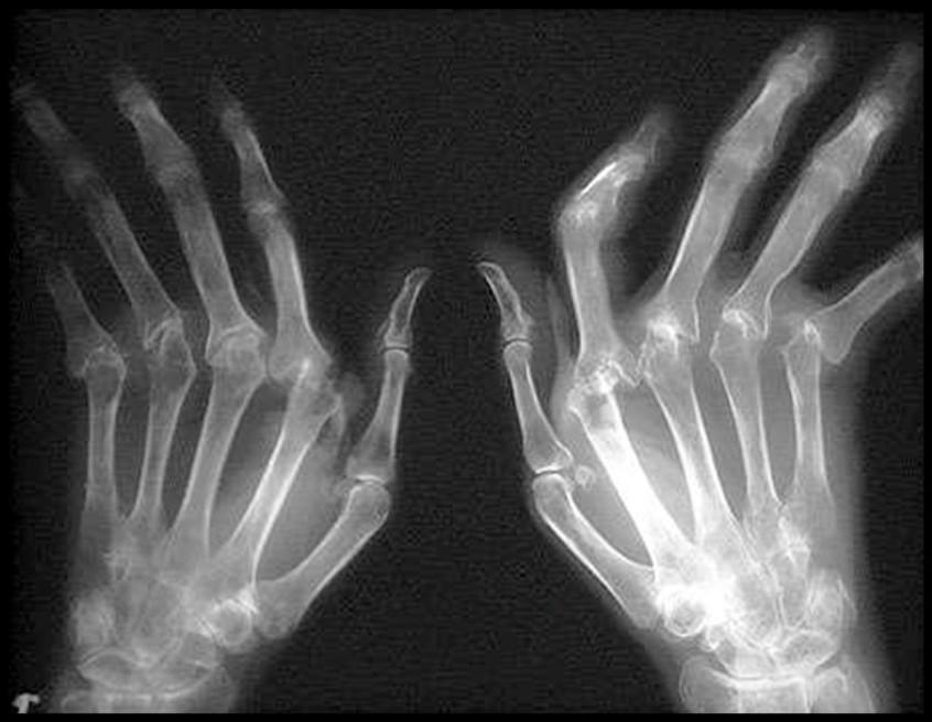 положительные отзывы о лечении ревматоидного артрита