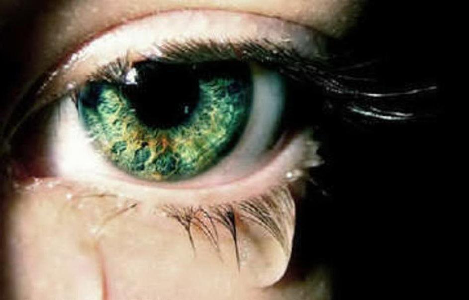 о чем говорят глаза? может о каком то заболевании?